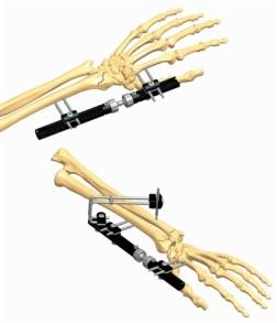 Wrist 1.1