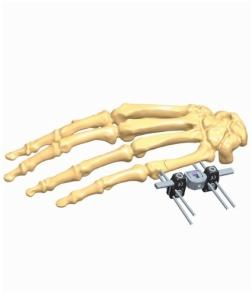 hand 1.2