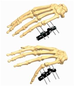 Hand 1.5