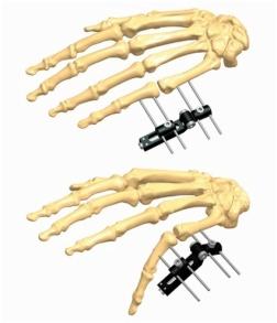 Hand 2.1