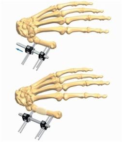 Hand 4.1